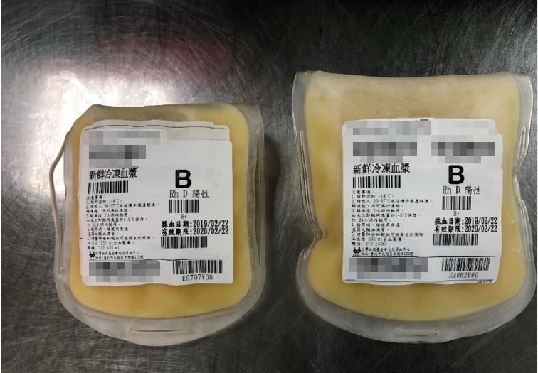 新鮮冷凍血漿